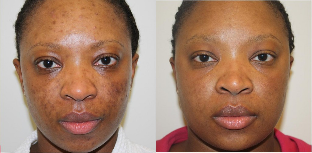 Micro-Needling: The New Trend for Improving Wrinkles and Acne Scars